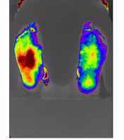 Foot Blood Flow Stimulation Image